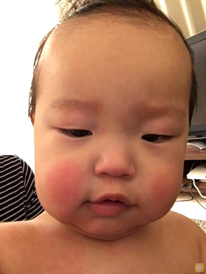顔に出た突発性発疹